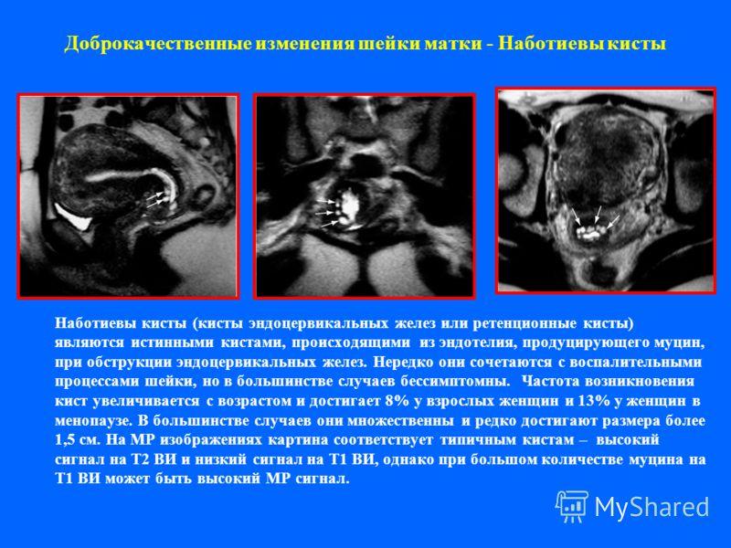 Доброкачественные изменения шейки матки - Наботиевы кисты Наботиевы кисты (кисты эндоцервикальных желез или ретенционные кисты) являются истинными кистами, происходящими из эндотелия, продуцирующего муцин, при обструкции эндоцервикальных желез. Неред