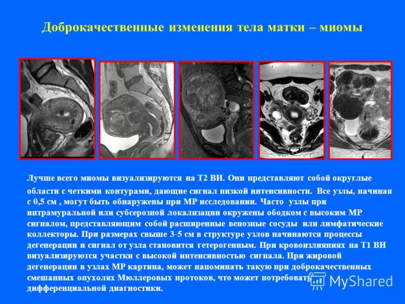 Доброкачественные изменения тела матки – миомы Лучше всего миомы визуализируются на Т2 ВИ. Они представляют собой округлые области с четкими контурами, дающие сигнал низкой интенсивности. Все узлы, начиная с 0,5 см, могут быть обнаружены при МР иссле