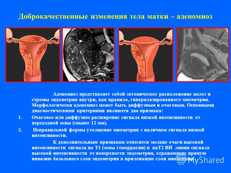 Доброкачественные изменения тела матки – аденомиоз Аденомиоз представляет собой эктопическое расположение желез и стромы эндометрия внутри, как правило, гиперплазированного миометрия. Морфологически аденомиоз может быть диффузным и очаговым. Основным