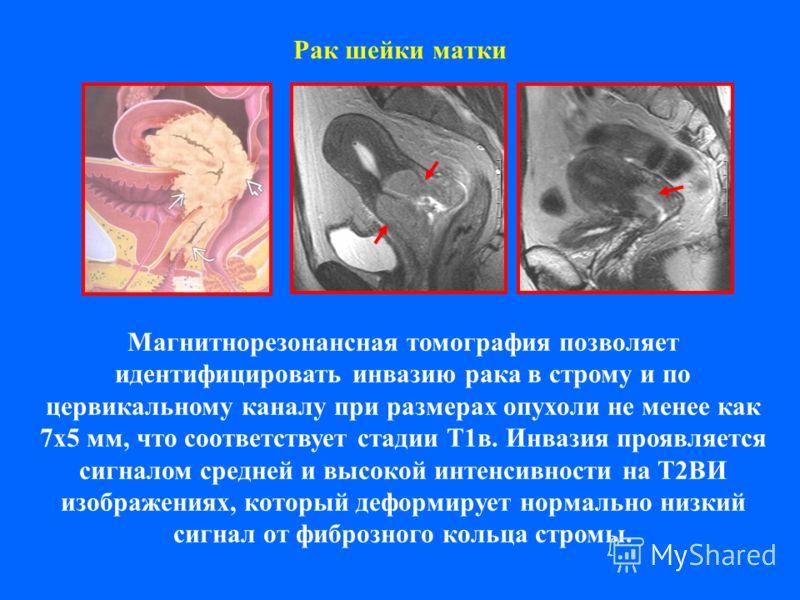 Рак шейки матки Магнитнорезонансная томография позволяет идентифицировать инвазию рака в строму и по цервикальному каналу при размерах опухоли не менее как 7х5 мм, что соответствует стадии Т1в. Инвазия проявляется сигналом средней и высокой интенсивн