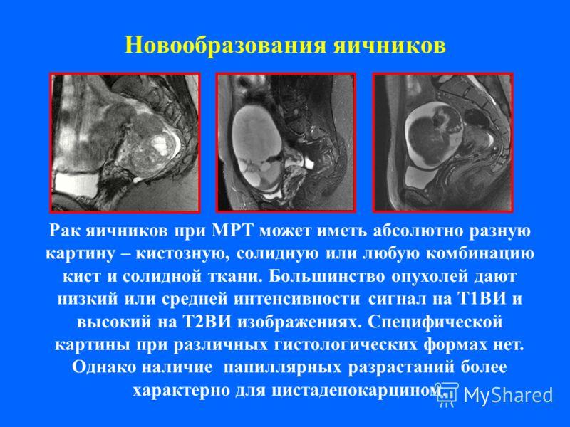 Новообразования яичников Рак яичников при МРТ может иметь абсолютно разную картину – кистозную, солидную или любую комбинацию кист и солидной ткани. Большинство опухолей дают низкий или средней интенсивности сигнал на Т1ВИ и высокий на Т2ВИ изображен