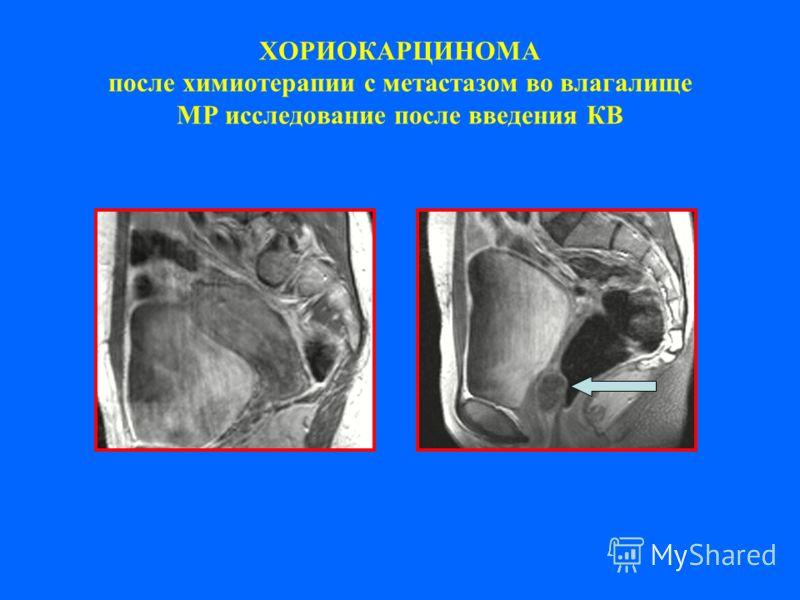 ХОРИОКАРЦИНОМА после химиотерапии с метастазом во влагалище МР исследование после введения КВ