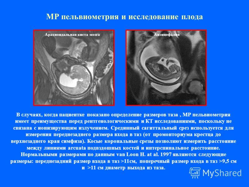 МР пельвиометрия и исследование плода В случаях, когда пациентке показано определение размеров таза, МР пельвиометрия имеет преимущества перед рентгенологическими и КТ исследованиями, поскольку не связана с ионизирующим излучением. Срединный сагиттал