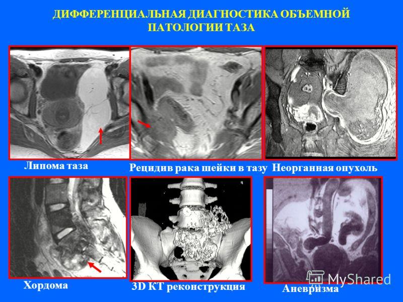 ДИФФЕРЕНЦИАЛЬНАЯ ДИАГНОСТИКА ОБЪЕМНОЙ ПАТОЛОГИИ ТАЗА Липома таза Рецидив рака шейки в тазуНеорганная опухоль Хордома Аневризма 3D КТ реконструкция