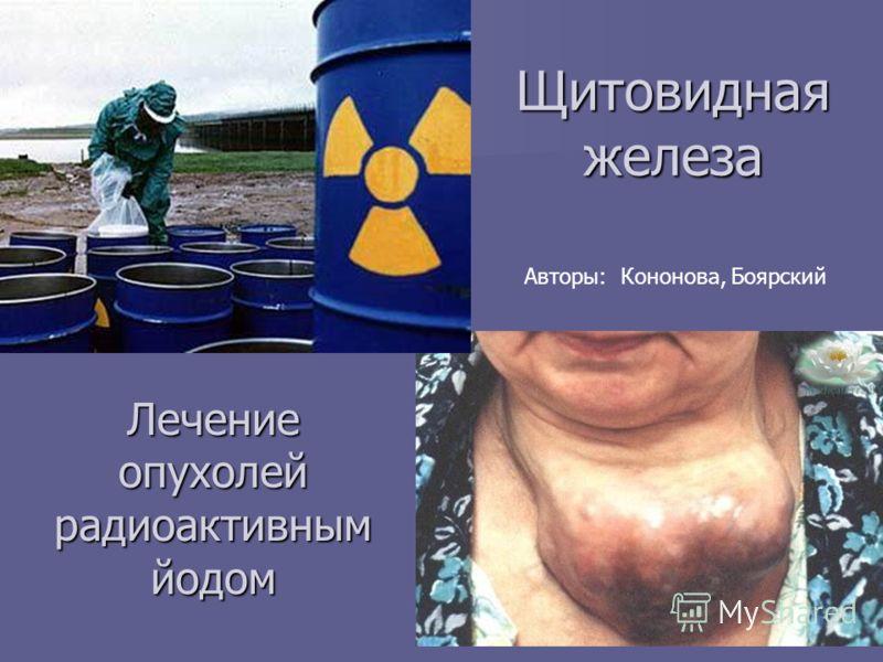 Щитовидная железа Лечение опухолей радиоактивным йодом Авторы: Кононова, Боярский