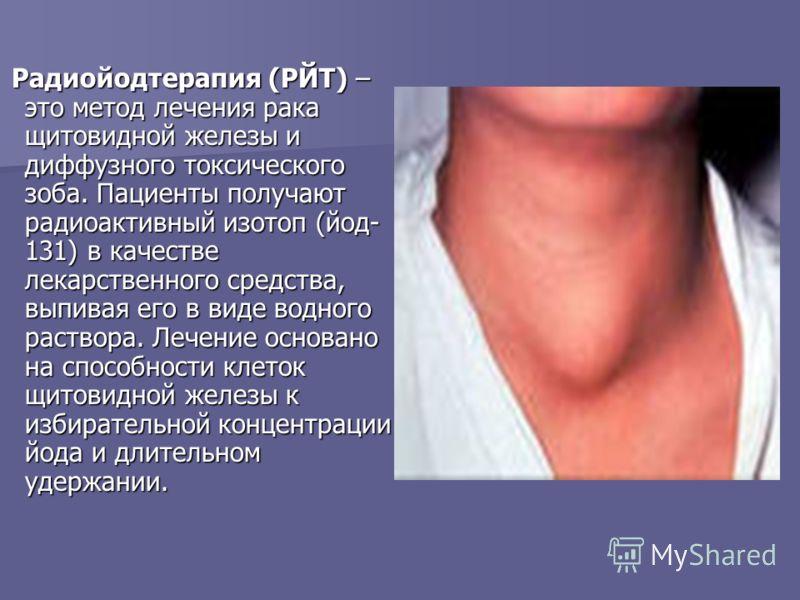 Радиойодтерапия (РЙТ) – это метод лечения рака щитовидной железы и диффузного токсического зоба. Пациенты получают радиоактивный изотоп (йод- 131) в качестве лекарственного средства, выпивая его в виде водного раствора. Лечение основано на способност