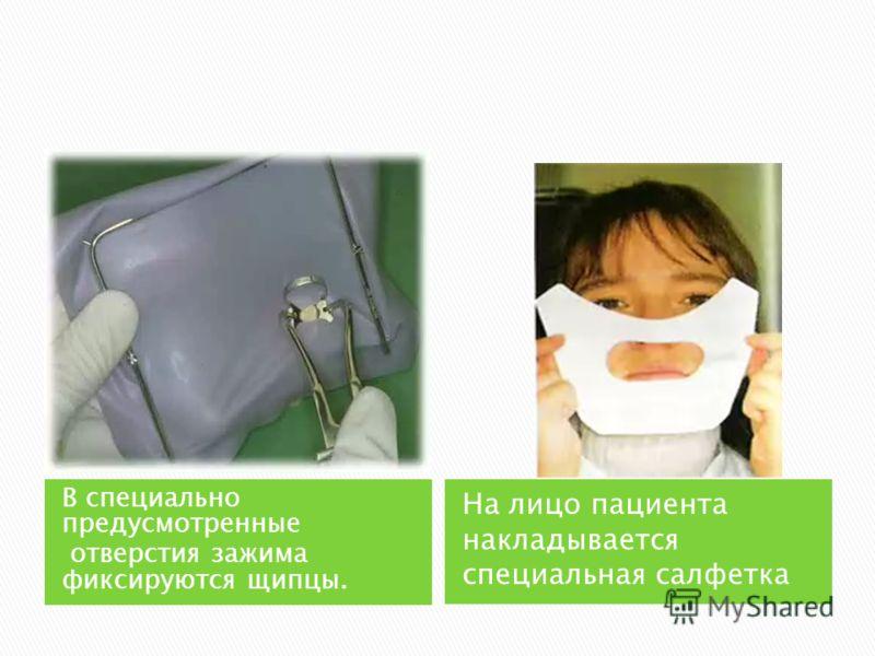 В специально предусмотренные отверстия зажима фиксируются щипцы. На лицо пациента накладывается специальная салфетка