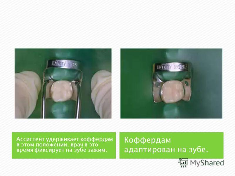 Ассистент удерживает коффердам в этом положении, врач в это время фиксирует на зубе зажим. Коффердам адаптирован на зубе.