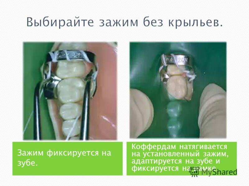 Зажим фиксируется на зубе. Коффердам натягивается на установленный зажим, адаптируется на зубе и фиксируется на рамке.