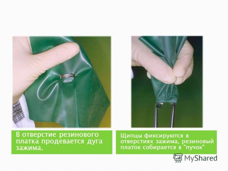 В отверстие резинового платка продевается дуга зажима. Щипцы фиксируются в отверстиях зажима, резиновый платок собирается в пучок