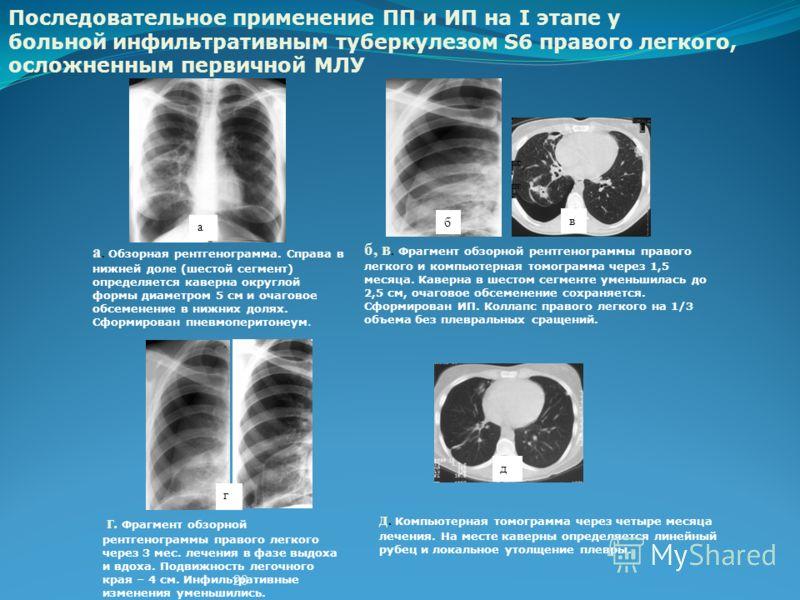 20 а б а. Обзорная рентгенограмма. Справа в нижней доле (шестой сегмент) определяется каверна округлой формы диаметром 5 см и очаговое обсеменение в нижних долях. Сформирован пневмоперитонеум. в б, в. Фрагмент обзорной рентгенограммы правого легкого