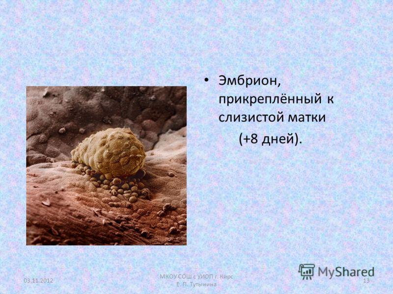 Эмбрион, прикреплённый к слизистой матки (+8 дней). 03.11.201213 МКОУ СОШ с УИОП г. Кирс Е. П. Тутынина