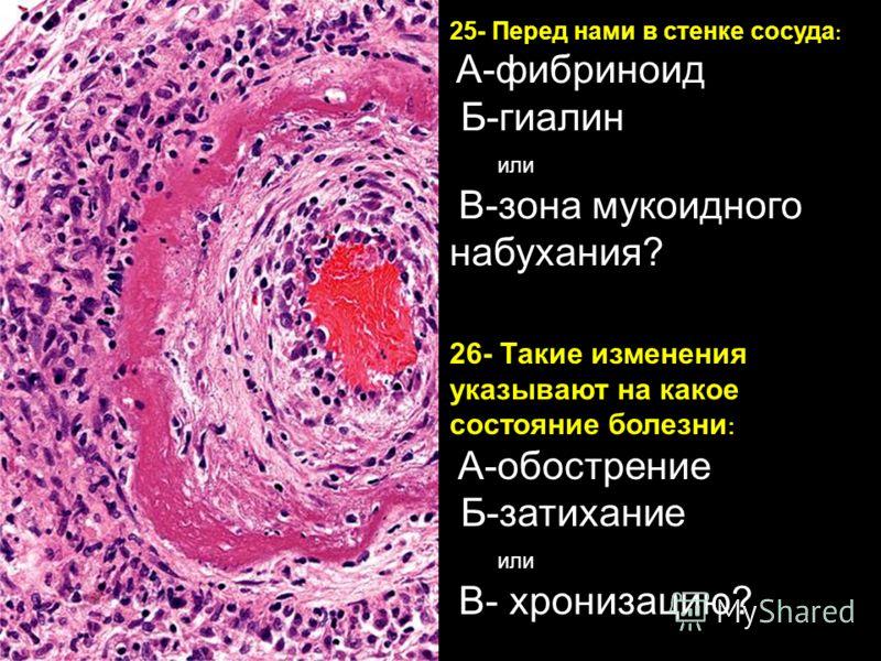 Фибриноид фото