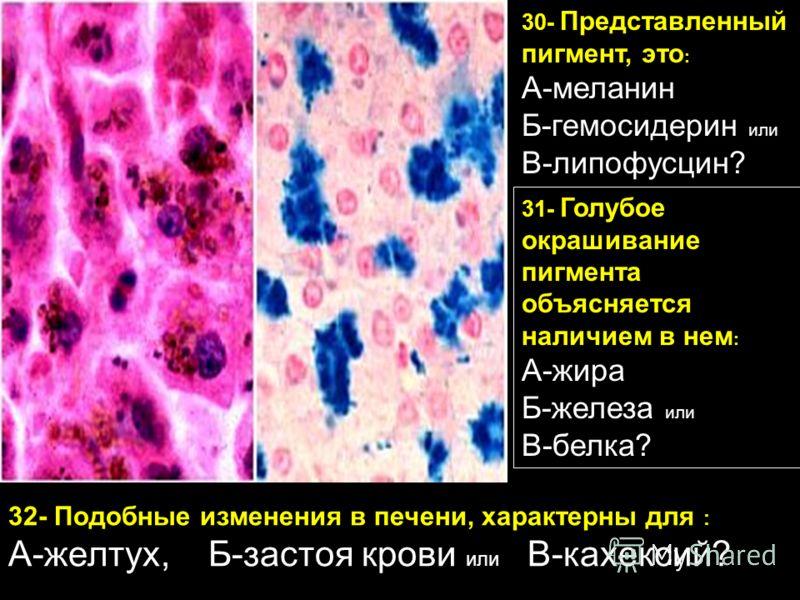 30- Представленный пигмент, это : А-меланин Б-гемосидерин или В-липофусцин? 32- Подобные изменения в печени, характерны для : А-желтух, Б-застоя крови или В-кахексий? 31- Голубое окрашивание пигмента объясняется наличием в нем : А-жира Б-железа или В