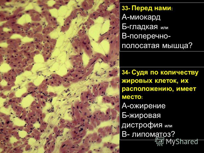 33- Перед нами : А-миокард Б-гладкая или В-поперечно- полосатая мышца? 34- Судя по количеству жировых клеток, их расположению, имеет место : А-ожирение Б-жировая дистрофия или В- липоматоз?