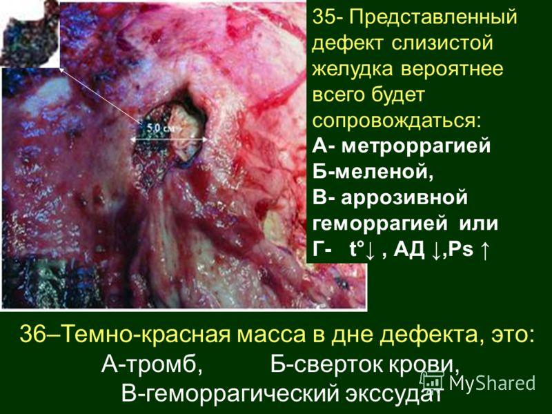 35- Представленный дефект слизистой желудка вероятнее всего будет сопровождаться: А- метроррагией Б-меленой, В- аррозивной геморрагией или Г- t°, АД,Ps 36–Темно-красная масса в дне дефекта, это: А-тромб, Б-сверток крови, В-геморрагический экссудат