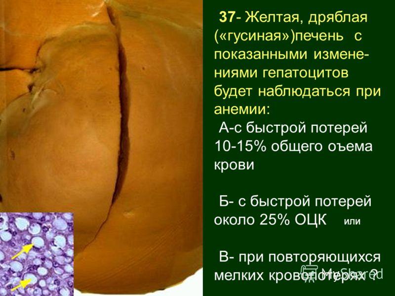 37- Желтая, дряблая («гусиная»)печень с показанными измене- ниями гепатоцитов будет наблюдаться при анемии: А-с быстрой потерей 10-15% общего оъема крови Б- с быстрой потерей около 25% ОЦК или В- при повторяющихся мелких кровопотерях ?