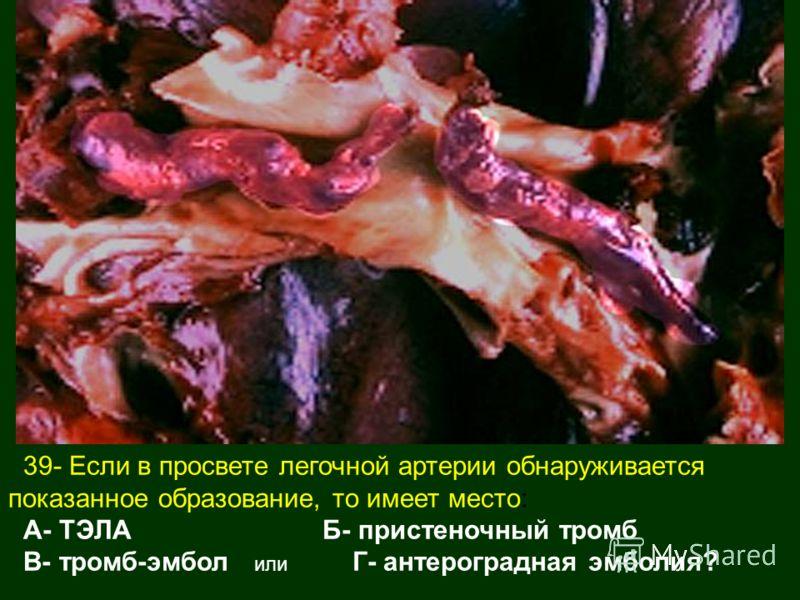 39- Если в просвете легочной артерии обнаруживается показанное образование, то имеет место: А- ТЭЛА Б- пристеночный тромб В- тромб-эмбол или Г- антероградная эмболия?