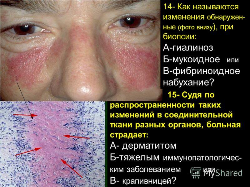 15- Судя по распространенности таких изменений в соединительной ткани разных органов, больная страдает : А- дерматитом Б-тяжелым иммунопатологичес- ким заболеванием или В- крапивницей ? 14- Как называются изменения обнаружен- ные (фото внизу ), при б