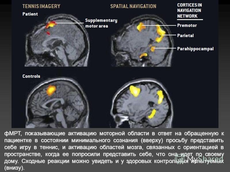 фМРТ, показывающие активацию моторной области в ответ на обращенную к пациентке в состоянии минимального сознания (вверху) просьбу представить себе игру в теннис, и активацию областей мозга, связанных с ориентацией в пространстве, когда ее попросили