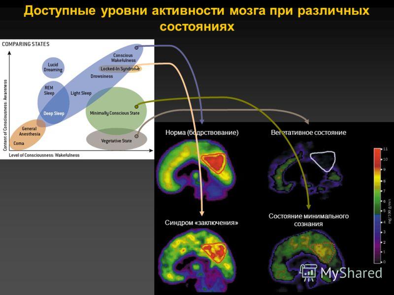 Доступные уровни активности мозга при различных состояниях Норма (бодрствование)Вегетативное состояние Состояние минимального сознания Синдром «заключения»
