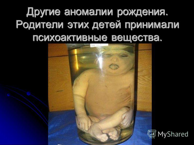 Другие аномалии рождения. Родители этих детей принимали психоактивные вещества.