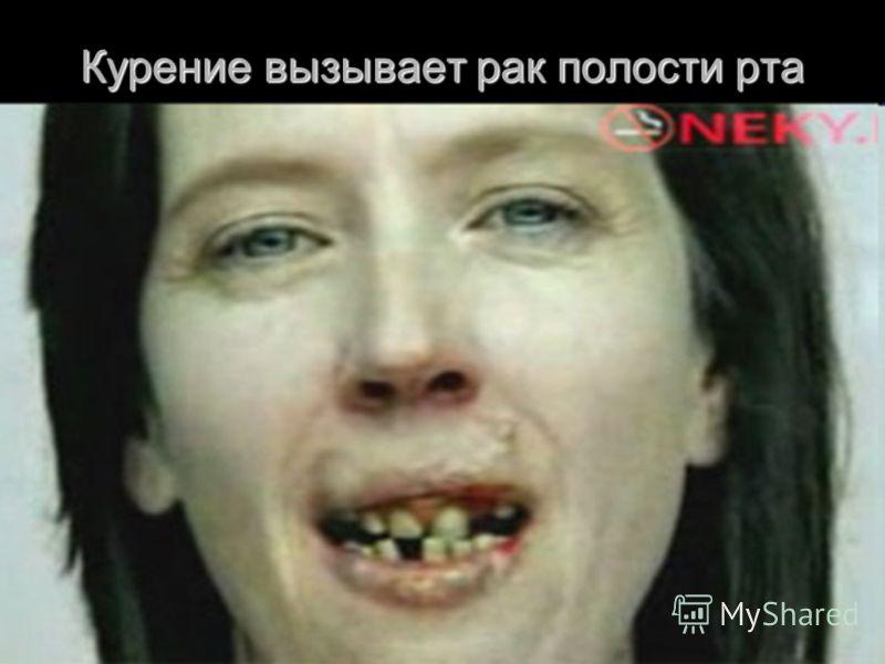 Курение вызывает рак полости рта