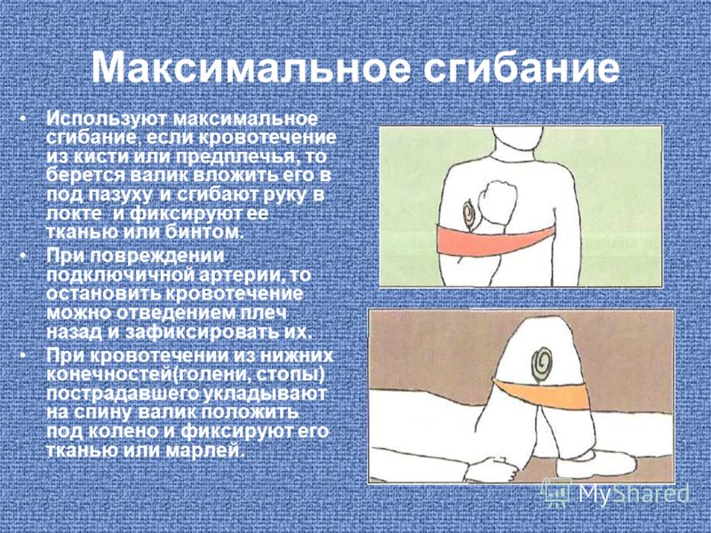 Максимальное сгибание Используют максимальное сгибание, если кровотечение из кисти или предплечья, то берется валик вложить его в под пазуху и сгибают руку в локте и фиксируют ее тканью или бинтом. При повреждении подключичной артерии, то остановить