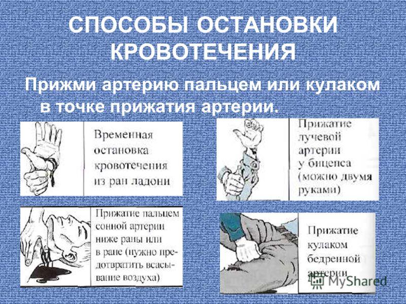 СПОСОБЫ ОСТАНОВКИ КРОВОТЕЧЕНИЯ Прижми артерию пальцем или кулаком в точке прижатия артерии.