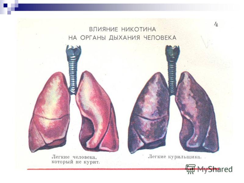 Дыхательная система при алкоголизме