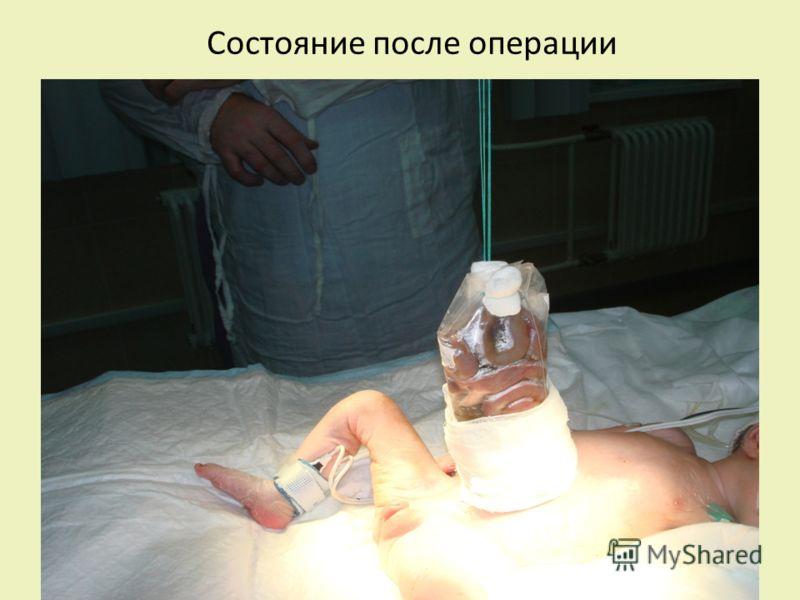 Состояние после операции