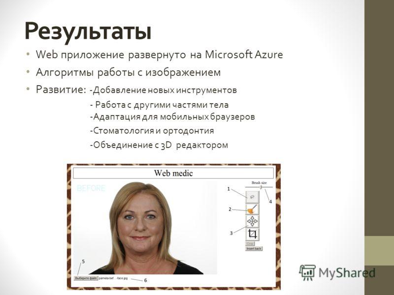 Результаты Web приложение развернуто на Microsoft Azure Алгоритмы работы с изображением Развитие: -Добавление новых инструментов - Работа с другими частями тела -Адаптация для мобильных браузеров -Стоматология и ортодонтия -Объединение с 3D редакторо