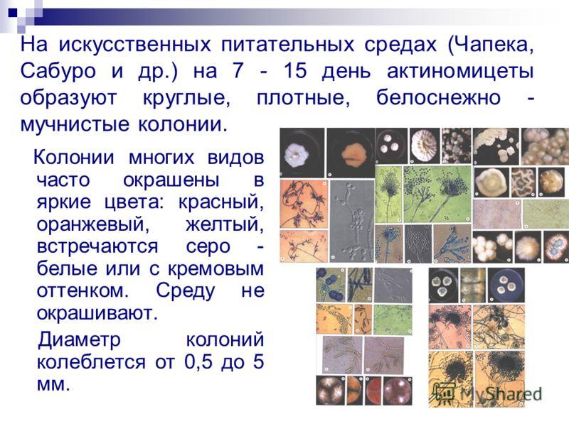 На искусственных питательных средах (Чапека, Сабуро и др.) на 7 - 15 день актиномицеты образуют круглые, плотные, белоснежно - мучнистые колонии. Колонии многих видов часто окрашены в яркие цвета: красный, оранжевый, желтый, встречаются серо - белые