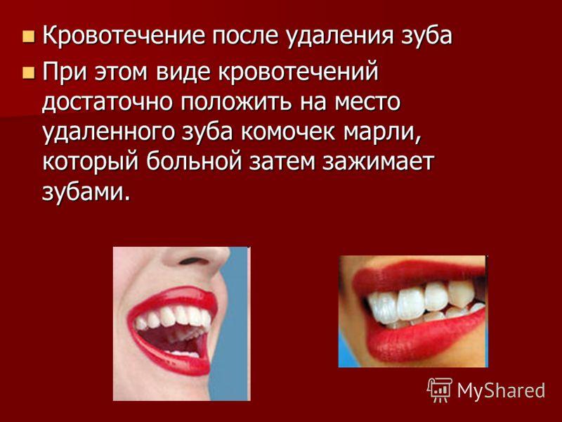 Кровотечение после удаления зуба Кровотечение после удаления зуба При этом виде кровотечений достаточно положить на место удаленного зуба комочек марли, который больной затем зажимает зубами. При этом виде кровотечений достаточно положить на место уд