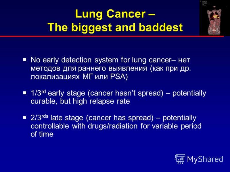 Lung Cancer – The biggest and baddest No early detection system for lung cancer– нет методов для раннего выявления (как при др. локализациях МГ или PSA) 1/3 rd early stage (cancer hasnt spread) – potentially curable, but high relapse rate 2/3 rds lat