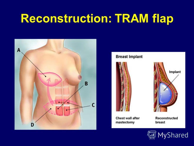 Reconstruction: TRAM flap