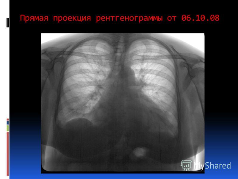 Прямая проекция рентгенограммы от 06.10.08