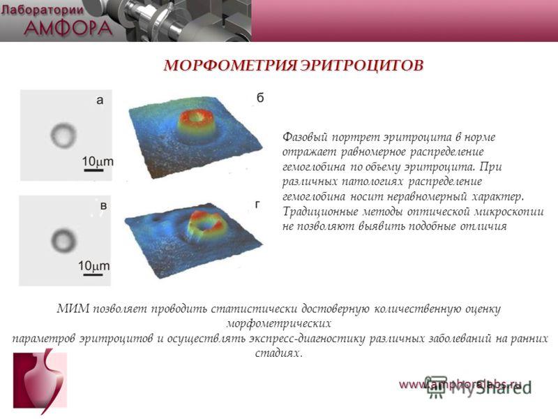 МОРФОМЕТРИЯ ЭРИТРОЦИТОВ Фазовый портрет эритроцита в норме отражает равномерное распределение гемоглобина по объему эритроцита. При различных патологиях распределение гемоглобина носит неравномерный характер. Традиционные методы оптической микроскопи