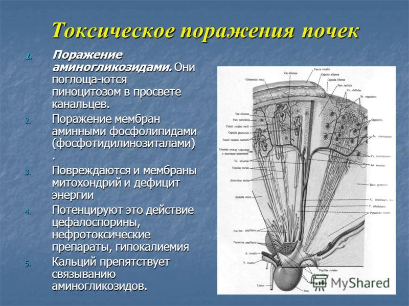 Токсическое поражения почек 1. Поражение аминогликозидами. Они поглоща-ются пиноцитозом в просвете канальцев. 2. Поражение мембран аминными фосфолипидами (фосфотидилинозиталами). 3. Повреждаются и мембраны митохондрий и дефицит энергии 4. Потенцируют