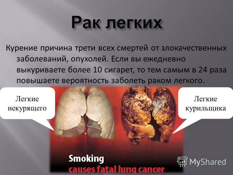 Курение причина трети всех смертей от злокачественных заболеваний, опухолей. Если вы ежедневно выкуриваете более 10 сигарет, то тем самым в 24 раза повышаете вероятность заболеть раком легкого. Легкие курильщика Легкие некурящего