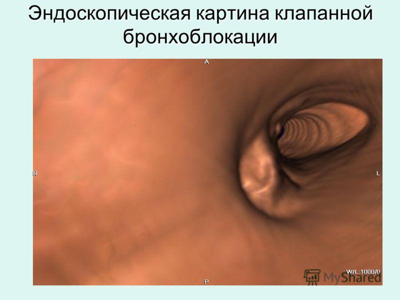 Эндоскопическая картина клапанной бронхоблокации