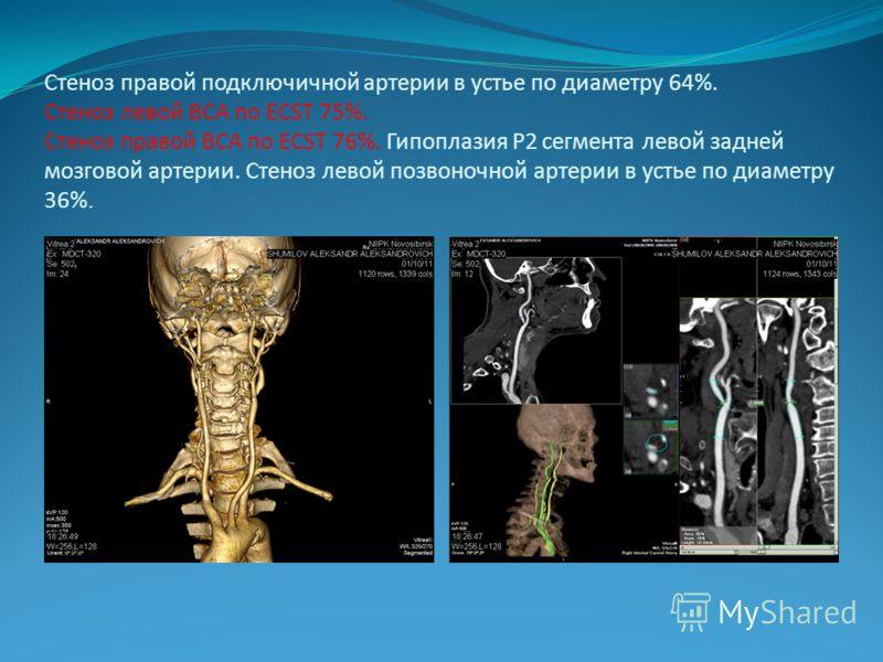Стеноз правой подключичной артерии в устье по диаметру 64%. Стеноз левой ВСА по ECST 75%. Стеноз правой ВСА по ECST 76%. Гипоплазия Р2 сегмента левой задней мозговой артерии. Стеноз левой позвоночной артерии в устье по диаметру 36%.