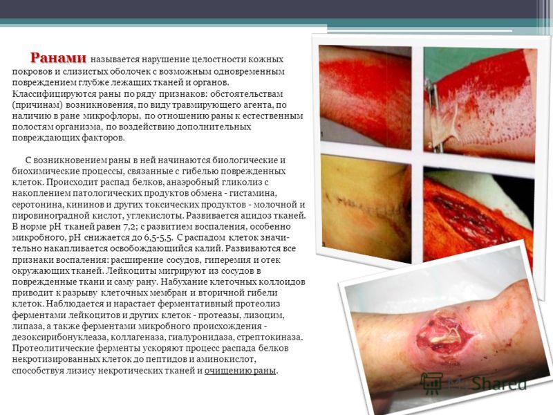 Ранами Ранами называется нарушение целостности кожных покровов и слизистых оболочек с возможным одновременным повреждением глубже лежащих тканей и органов. Классифицируются раны по ряду признаков: обстоятельствам (причинам) возникновения, по виду тра