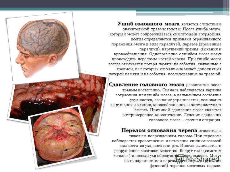 Сотрясение Мозга фото