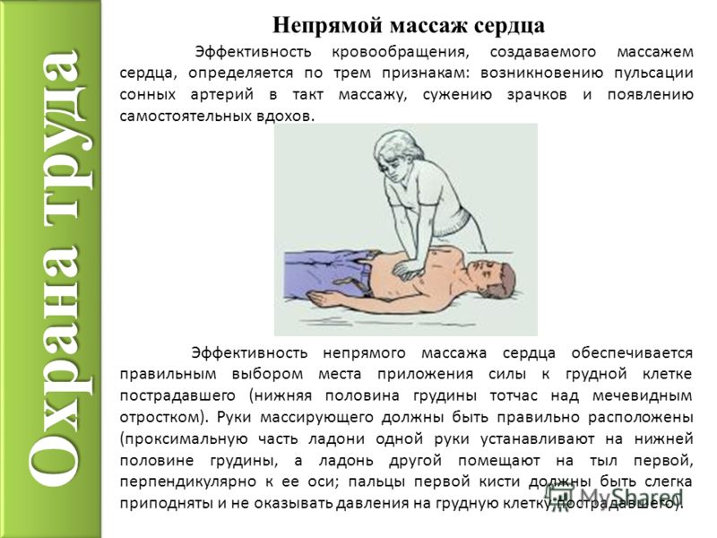 Охрана труда Непрямой массаж сердца Эффективность кровообращения, создаваемого массажем сердца, определяется по трем признакам: возникновению пульсации сонных артерий в такт массажу, сужению зрачков и появлению самостоятельных вдохов. Эффективность н