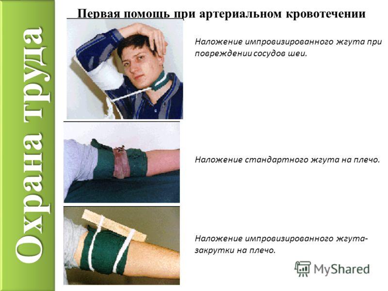 Охрана труда Наложение импровизированного жгута при повреждении сосудов шеи. Первая помощь при артериальном кровотечении Наложение стандартного жгута на плечо. Наложение импровизированного жгута- закрутки на плечо.