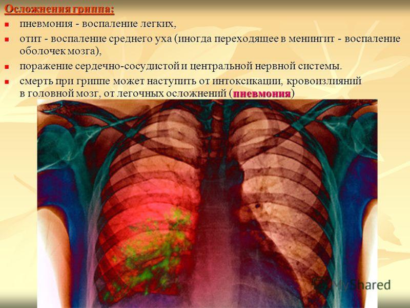 Осложнения гриппа: пневмония - воспаление легких, пневмония - воспаление легких, отит - воспаление среднего уха (иногда переходящее в менингит - воспаление оболочек мозга), отит - воспаление среднего уха (иногда переходящее в менингит - воспаление об