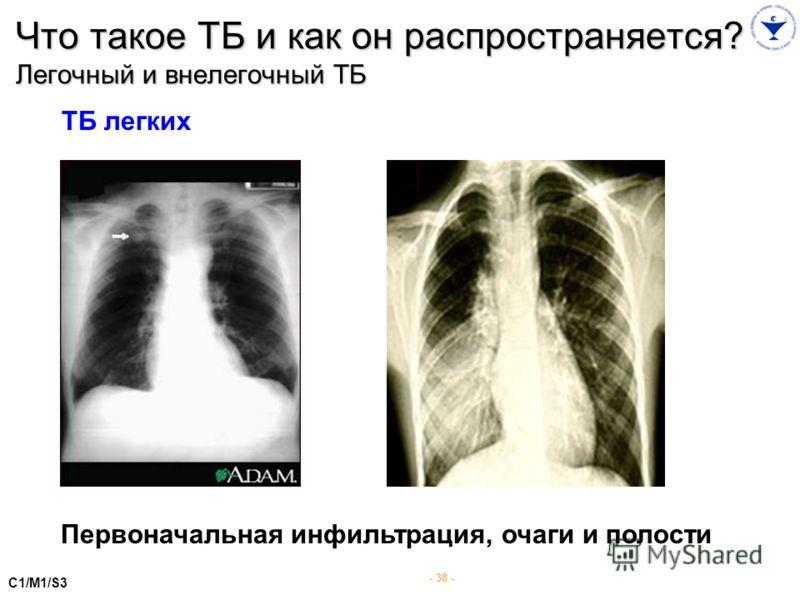 - 38 - ТБ легких Первоначальная инфильтрация, очаги и полости C1/M1/S3 Что такое ТБ и как он распространяется? Легочный и внелегочный ТБ