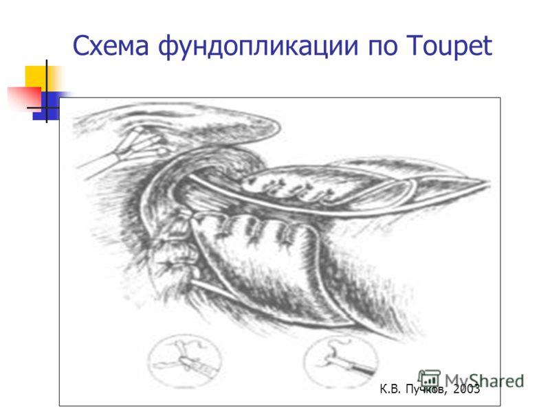 Схема фундопликации по Toupet К.В. Пучков, 2003