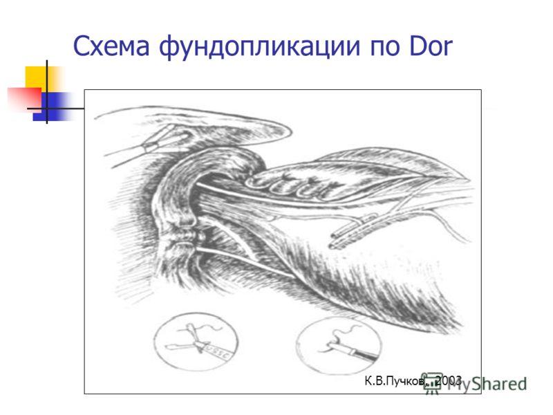 Схема фундопликации по Dor К.В.Пучков, 2003